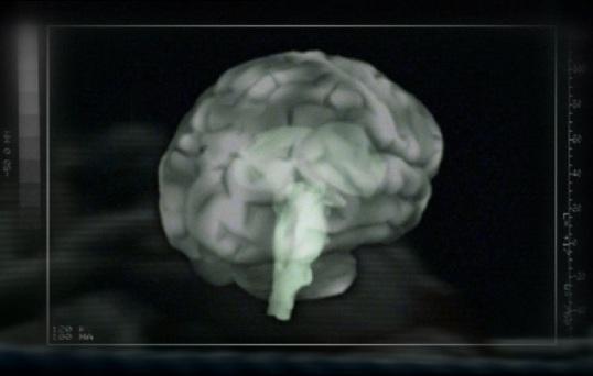 Hoe werken de hersenen 1