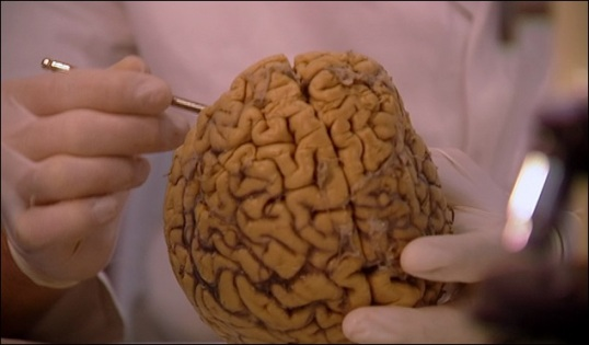 Hoe werken de hersenen 2